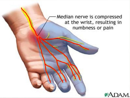 So what is Carpal Tunnel Syndrome anyway?