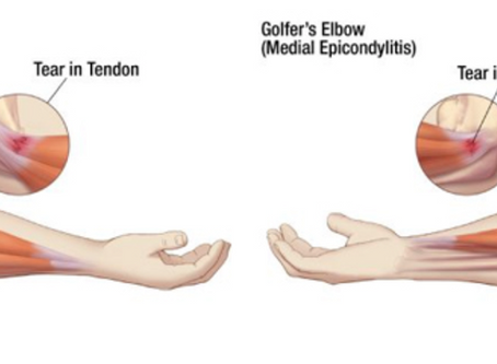 5 things you NEED to know about Tennis elbow!