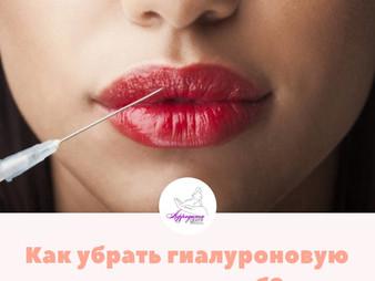 Как убрать гиалуроновую кислоту из губ? 👄
