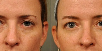 Какие процедуры помогают избавиться от темных кругов под глазами?