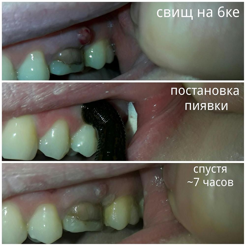 Пиявки в стоматологии
