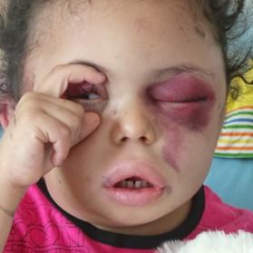 Yemen nel suo quarto anno di guerra