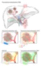 2_transarterial embolization_v02.jpg