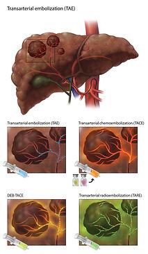 4_transarterial embolization_final_large