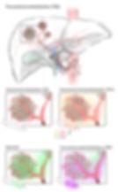 1_transarterial embolization.jpg