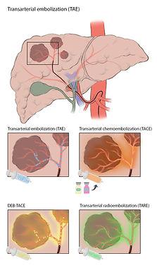3_transarterial embolization_v03-01.jpg