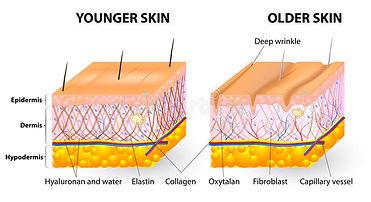 huidveroudering.jpg