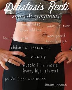 Know the signs & symptoms of #diastasisr