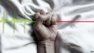 Euthanasia: Changing Perceptions of Acceptability