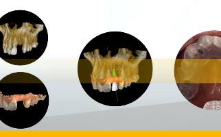 Создание цифрового рабочего процесса и точность при работе с имплантатами