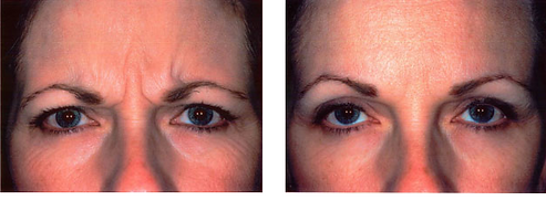 Frown lines Botox wrinkle injection Central City Medical Centre Perth