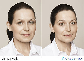 Dermal Fillers Before & After Central City Medical Centre