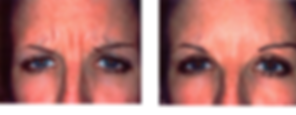 Eyebrow lift Botox wrinkle injection Central City Medical Centre Perth
