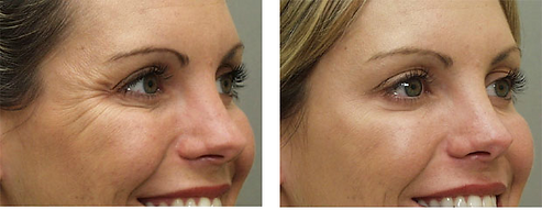 Botox wrinkle injection Central City Medical Centre Perth