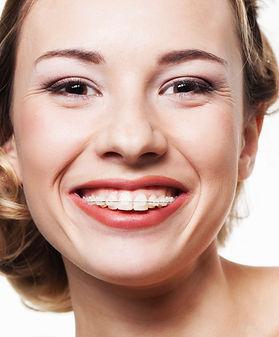 Clear-braces.jpg