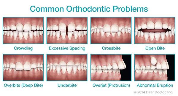 common-orthodontic-problems.jpg