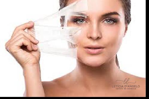 Peeling químico - Letícia D'Angelo