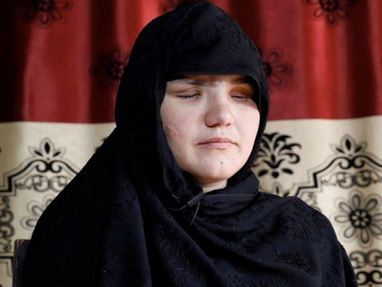 A 33-year-old Afghan woman, Khatera, was shot, stabbed and blinded, for getting a job
