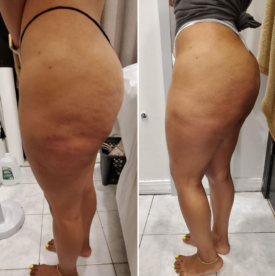 Venus Legacy Anti Cellulite Treatment
