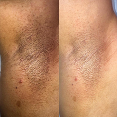 Armpitts Whitening / Blanqueamiento Axilar
