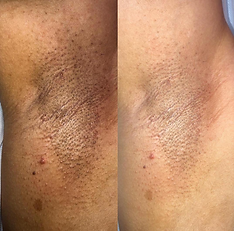 Armpitts Whitening : Blanqueamiento Axil