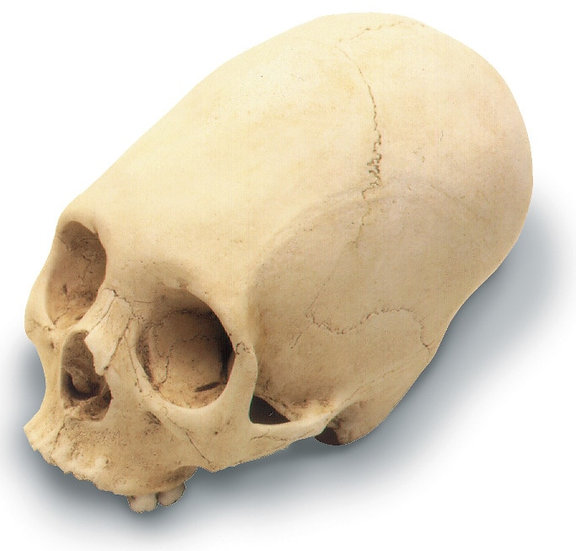 ANNULAR DEFORMATION CRANIUM