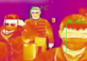 Thermal fever thermal detection.jpg