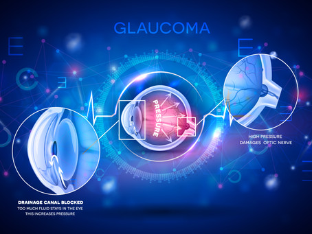 What is Glaucoma in Dogs & Cats?