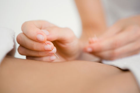 woman-holding-needle-acupuncture-therapy.jpg