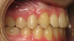 impacted right canine