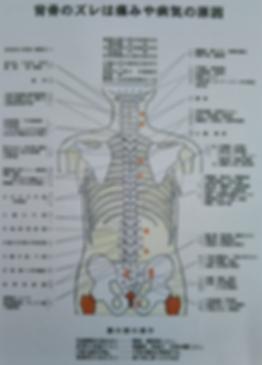 背骨のズレは痛みや病気の原因