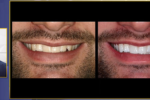 Teeth Whitening: From A to Z