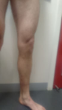 Leg After.JPG