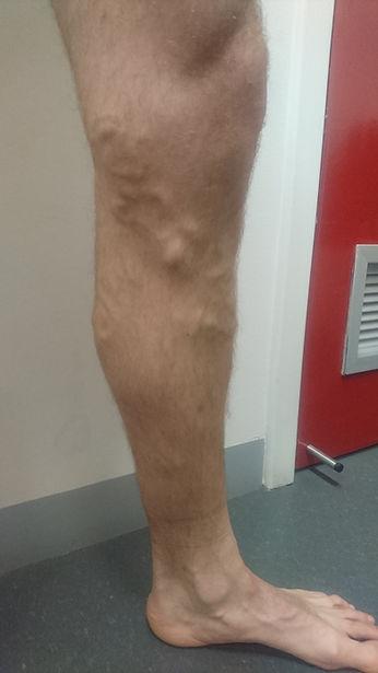 Leg Before.JPG