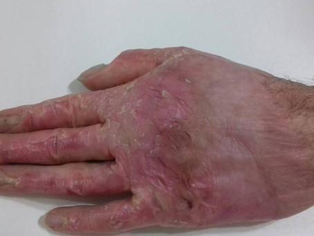 Queimaduras profundas. Como podemos melhorar as cicatrizes e prevenir deformidades?