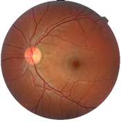 Fundus_photograph_of_a_healthy_left_eye_