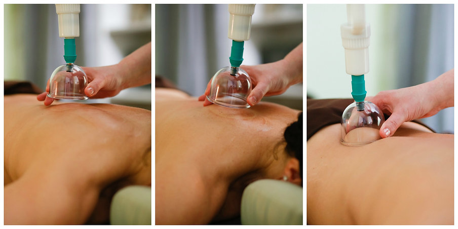 Massage cupping uses negitive pressure to lift and seperate the tissue layers allowing fresh blood and nutrients to enter the tissues.