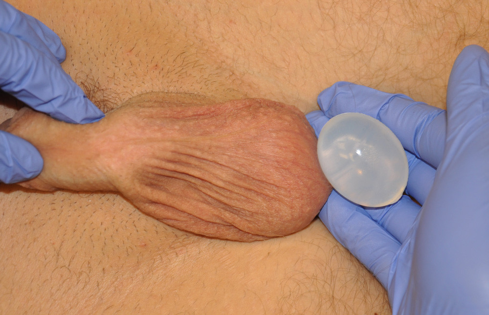 testicle-implants-sizing-indianapolis-dr-barry-eppley