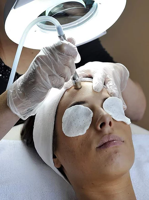 Microdermabrasion Series (3 sessions)
