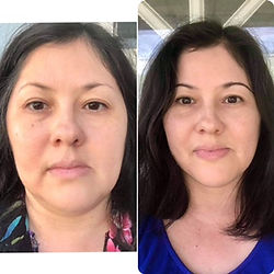 Felicia's results with Pomifera skin care.