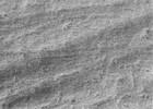 大人のエナメル質表面