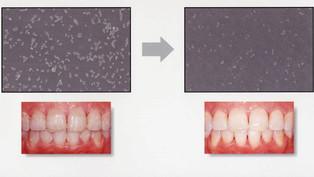 歯のクリーニングとは?