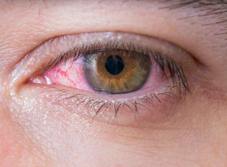 Sindrome de Olho Seco