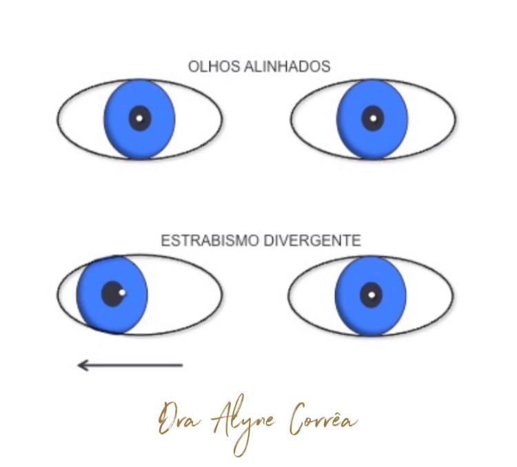 O estrabismo divergente é o desalinhamento ocular em que um dos olhos desvia para fora.