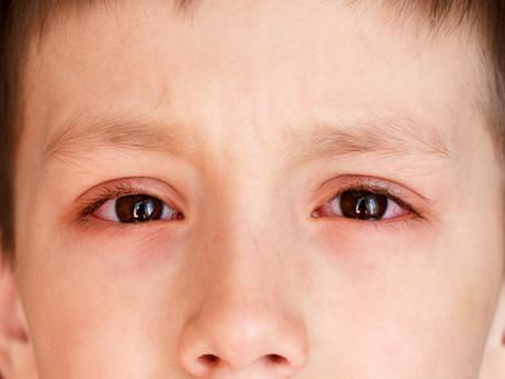 Alergia Ocular em Crianças