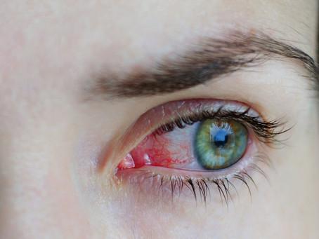 Sintomas oculares relacionados ao Covid-19