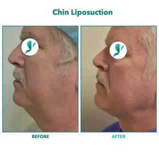 Chin Liposuction.003.jpeg