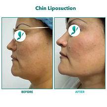 Chin Liposuction.005.jpeg