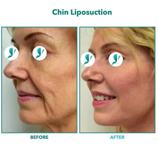 Chin Liposuction.007.jpeg