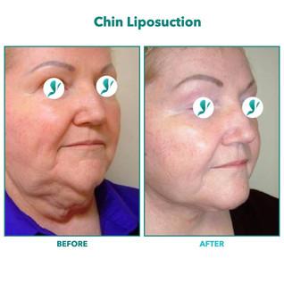 Chin Liposuction.002.jpeg